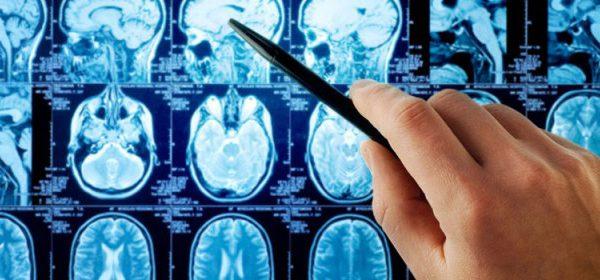 MRI scans photos