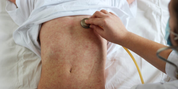 NHS urges public to keep vaccination appointments during coronavirus pandemic